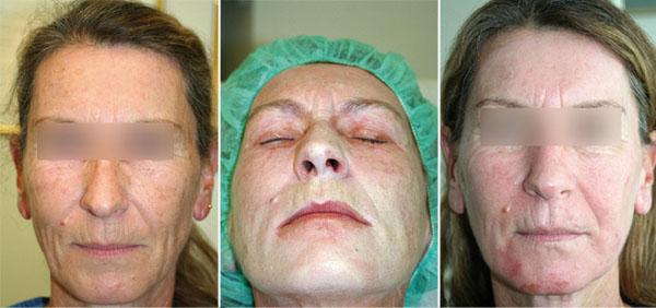 Abb. 2: Patientin vor, während und 7 Tage nach der Peeling-Behandlung