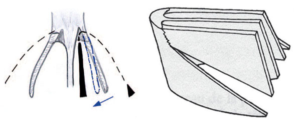 Fig. 7: In fractures for mini-rhinoplasty.
