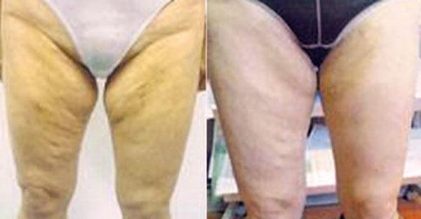 Abb. 12: 43-jährige Patientin nach 2-maliger Zeltiq-Anwendung (2 Zonen Oberschenkel innen).