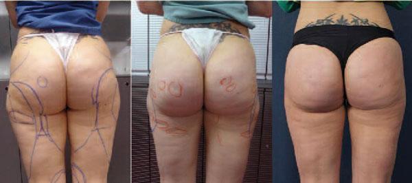 Abb. 16: 31-jährige Patientin nach händischer Absaugung der Reithosen und Cellulite-Behandlung, Subcision in Kryoanästhesie (LipoCryo)