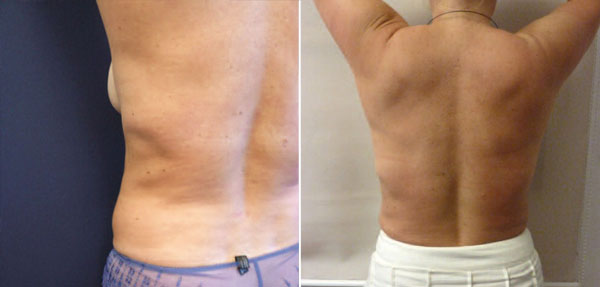 Abb. 22 und 23: 32 jährige Patientin (Fall 2) mit Atrophie des Fettgewebes nach Coolsculpting und nach Behandlung Liposhifting mit subkutaner Mobilisation von Fettgrafts.