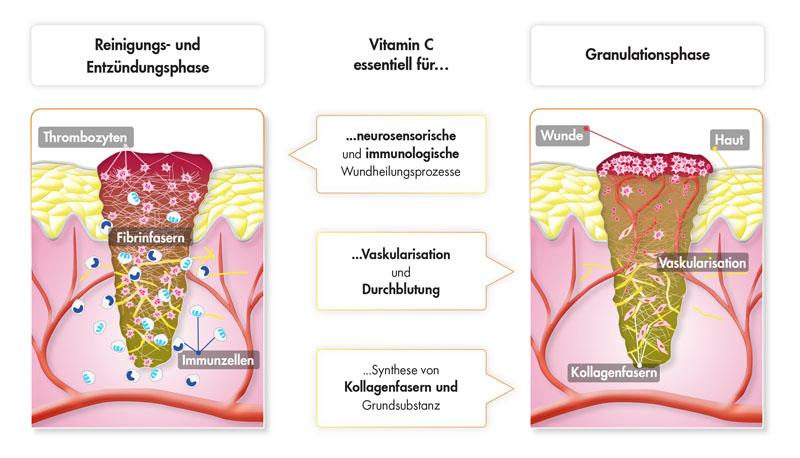 Abb. 2: Vitamin C ist ein essentieller Faktor in der Wundheilung.