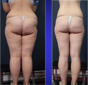 Abb. 9: Patientin vor und 9 Monate nach lymphschonender Fettabsaugung (insgesamt 7 Liter Fett in 2 Sitzungen abgesaugt).