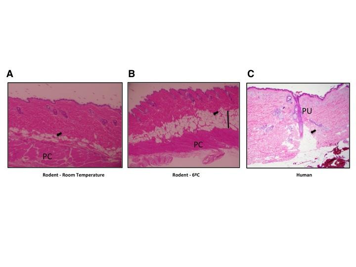 """Abb. 1: Typische dWAT-Strukturen bei Mäusen und Menschen: (A) Dermale Adipozyten in der C57/BI6 Maus bei Raumtemperaturen bilden mehrschichtige Struktur oberhalb der panniculus carnosus. (B) Deutliche Erweiterung der dWAT-Schicht in der C57/BI6 Maus nach einer Kälteexposition (6°C, 4 Tage); (C) Dermale Adipozyten in der menschlichen Haut bilden """"dermale Konusse"""" um die Haarfollikel herum. (Mit freundlicher Genehmigung von Trends Endocrin Metab [11])."""