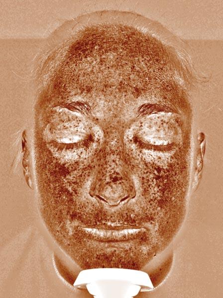 """Abb. 2: Über das sogenannte """"braune Bild"""", das ausschließlich Melanin in der Haut zeigt, werden Hyperpigmentierung in tieferen Hautschichten festgestellt."""