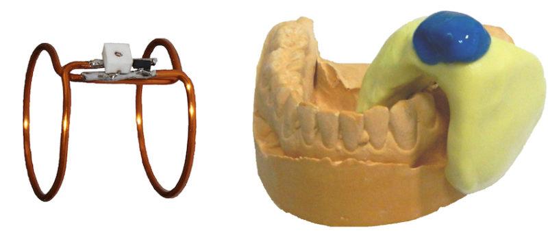 Mit der Doppelspule aus Kupfer (links) sind deutlich präzisere MRT-Bilder als bisher möglich. Ein Silikonmantel macht die Verwendung für Patienten besonders schonend.