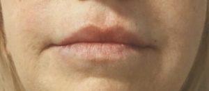 Abb. 3a + b: Lippenkorrektur mit Algeness HD 1,5%. (Fotos: Dr. Giorgiu Maulu).