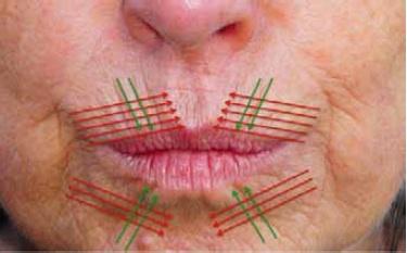 Abb. 5: Lage und Abstand der Fäden nach 2 Behandlungen, Beispiel Lippenregion.